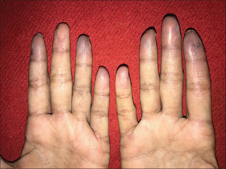 Figure 4: Raynaud's phenomenon in the case of systemic sclerosis