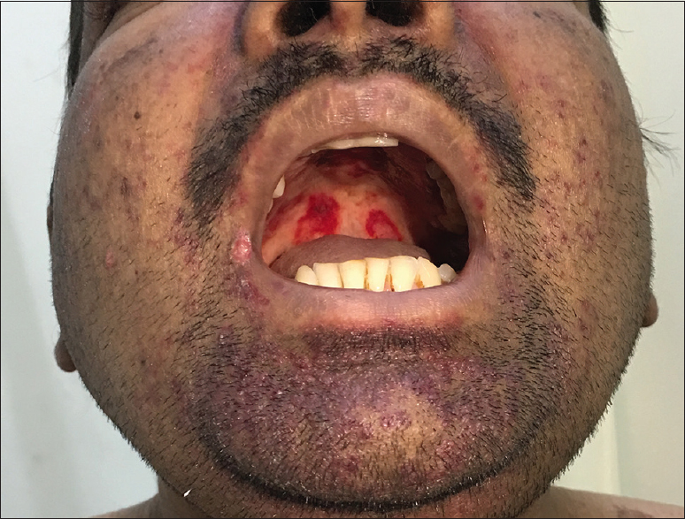Figure 8: Cushingoid habitus in the form of moon facies in a case of systemic lupus erythematosus; also seen are the characteristic palatal ulcers of systemic lupus erythematosus in the same patient