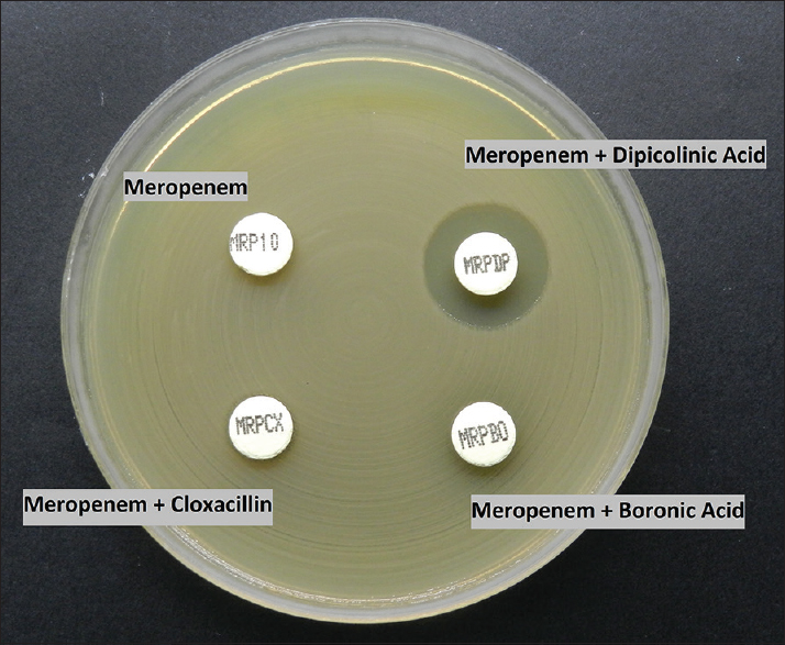 Figure 3: Combined disc test kit with KPC + MBL result (MRP + Dipicolinic acid ≥5 mm as compared to MRP)