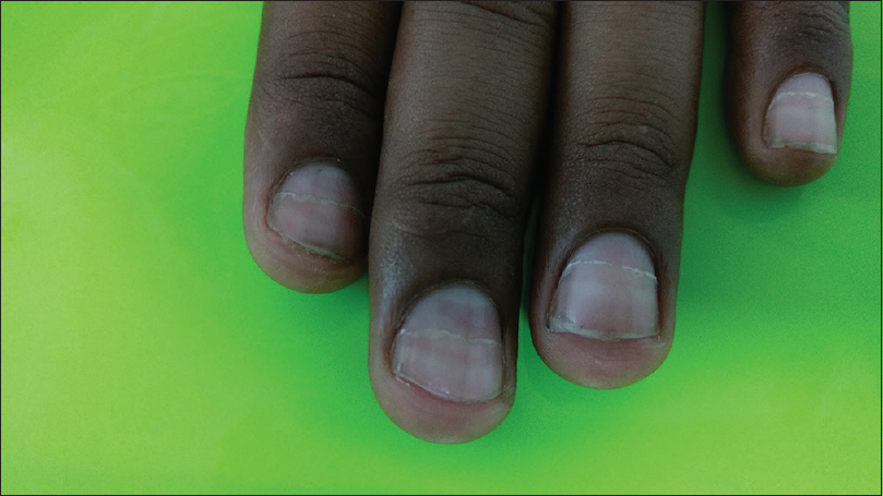 Figure 2: Onychomadesis of the fingernails (left hand)