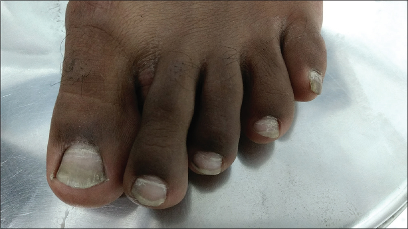 Figure 3: Onychomadesis of the toenails (left)